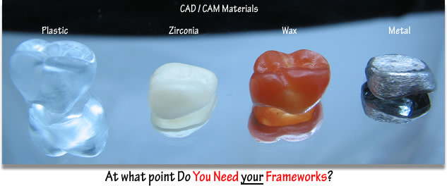 Dental Frameworks