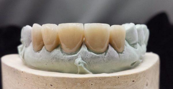5 unit Porcelain Fused to Zirconia