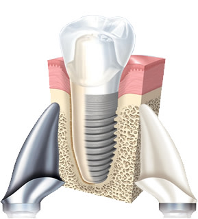 Custom Zirconia and Titanium abutments