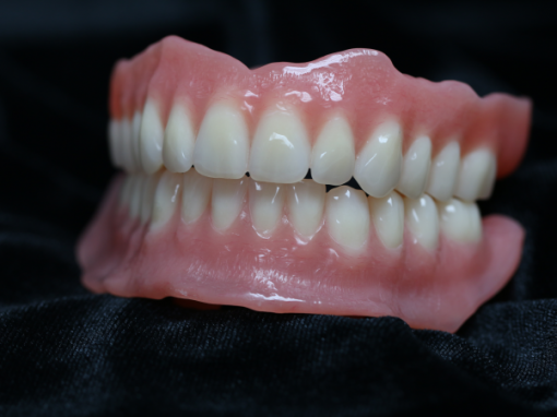 Full on Full Digital Denture